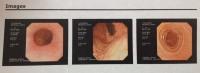 Endoscopy 1